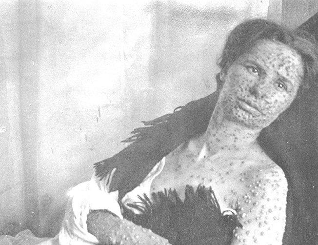 Eradication de la variole, les grandes manoeuvres ont commencé